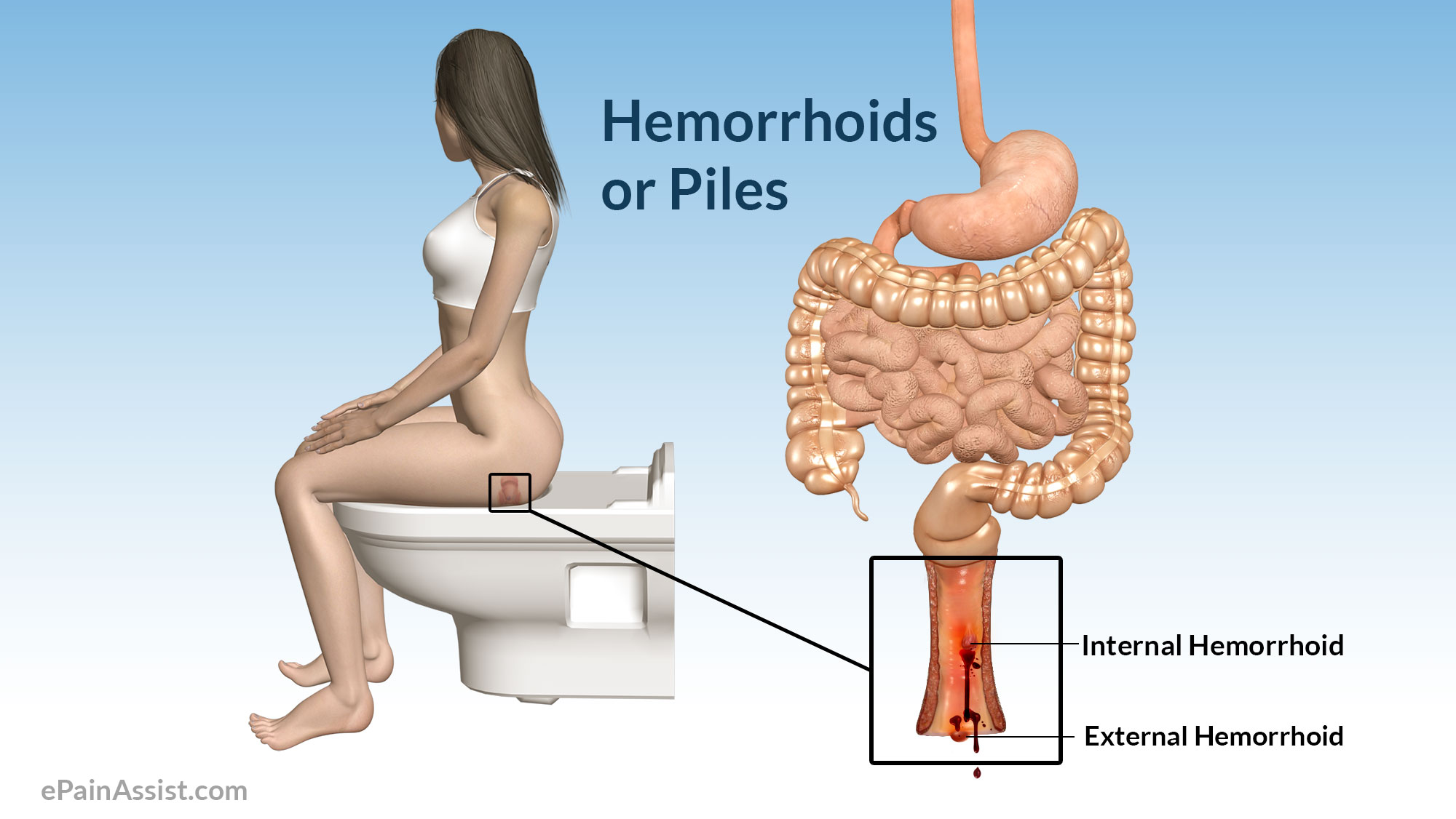 q & a on hemorrhoid or piles: is it a serious disease?, Skeleton