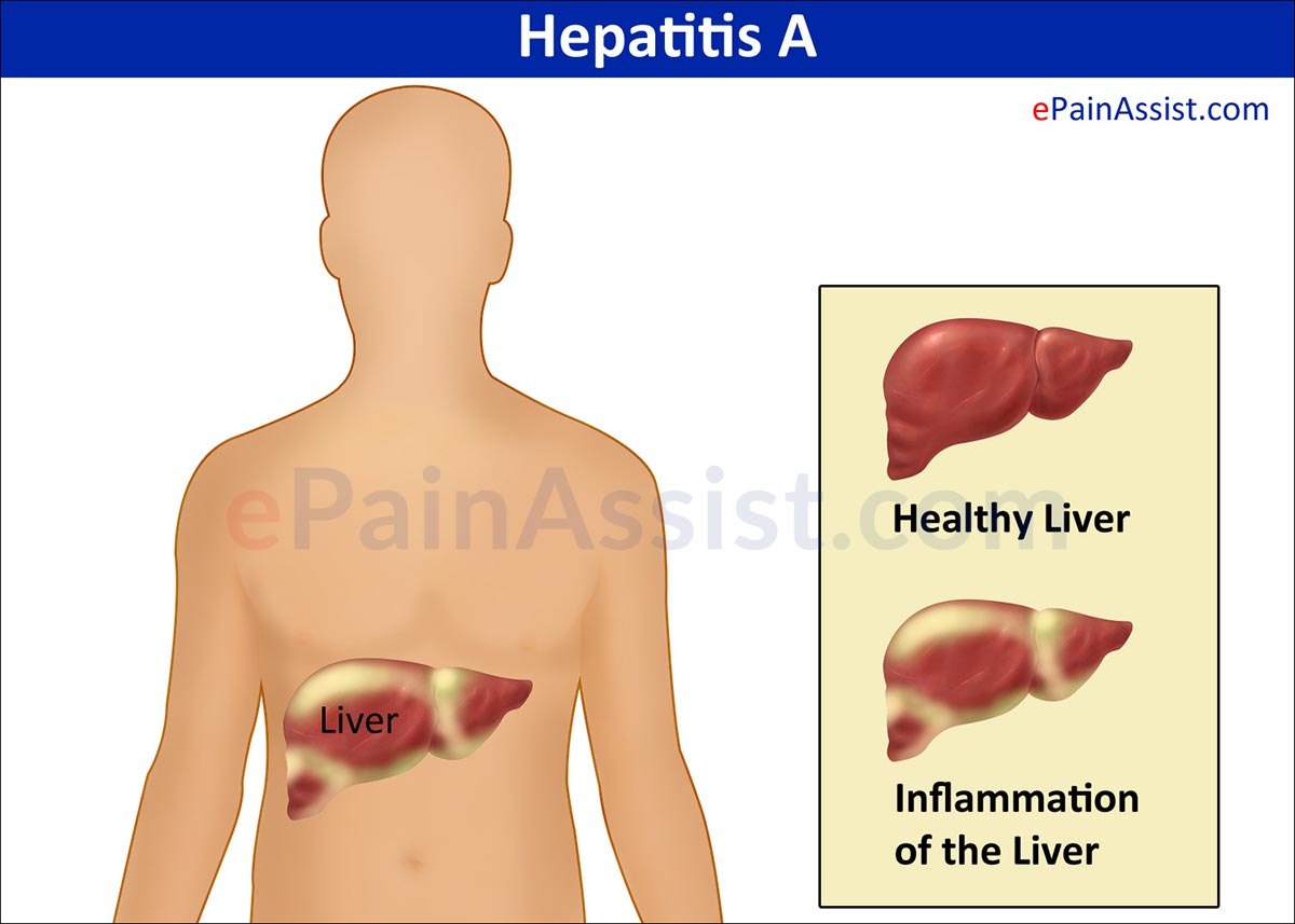 hepatitis a Ester little, md, is a faculty physician with the banner advanced liver disease and transplant center to schedule an appointment, call (602) 839-7000.