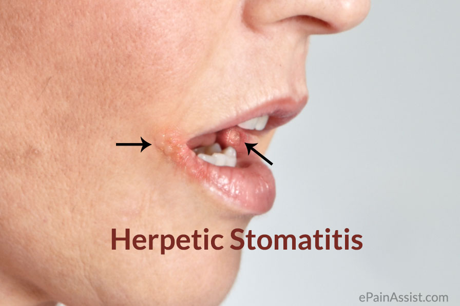 Herpetic Stomatitis Causes Signs Symptoms Diagnosis