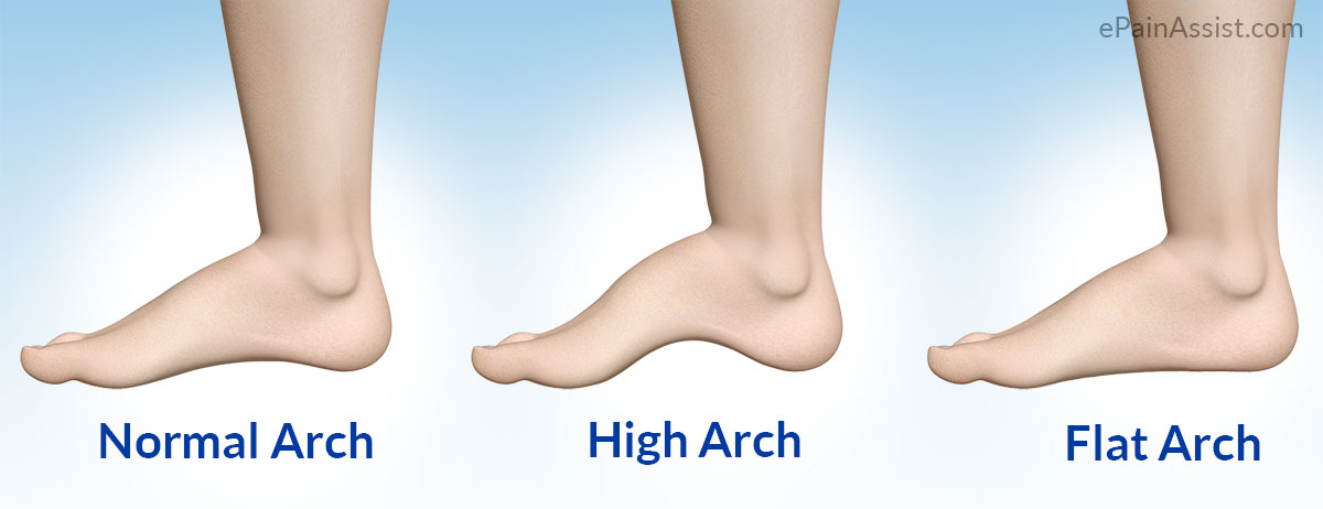 Pes Cavus or High Arch Foot