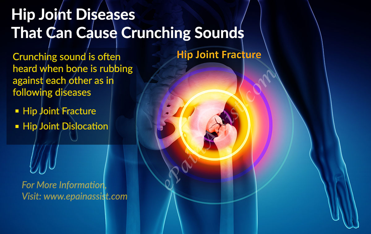 Hip Joint Diseases That Can Cause Crunching Sounds