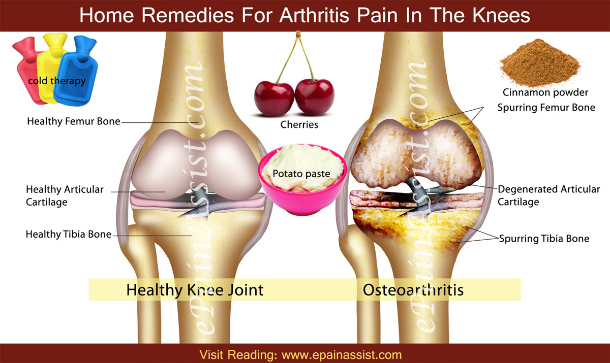home remedies for arthritis pain in the knees