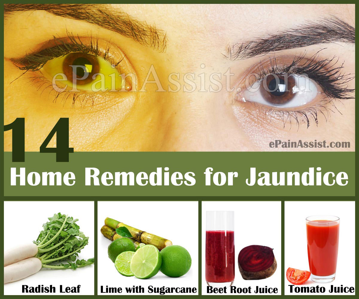 Home Remedies For Jaundice In Adults