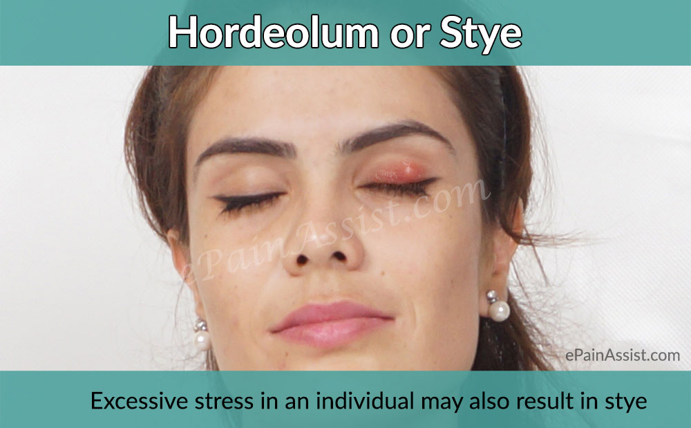 What is Stye (Sty) or Hordeolum?