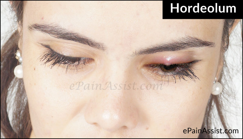 Causes of Stye (Sty) or Hordeolum