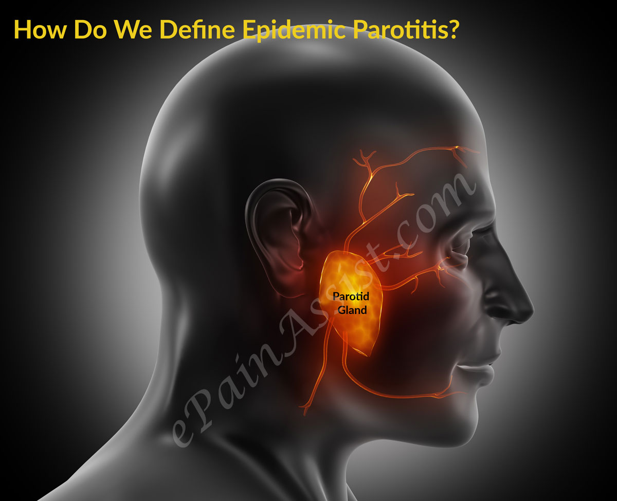 How Do We Define Mumps or Epidemic Parotitis?