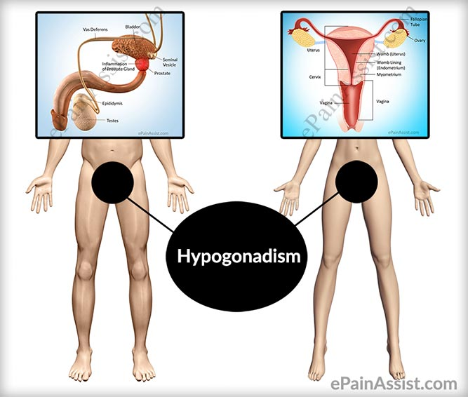hypogonadism: treatment, causes, clinical features, prevention, Skeleton