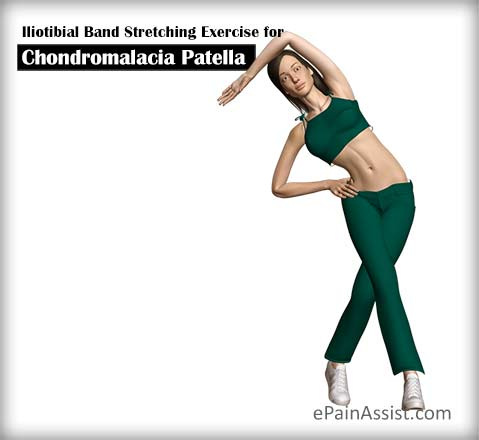 Iliotibial Band (IT Band) Stretching Exercise for Chondromalacia Patella (CMP)