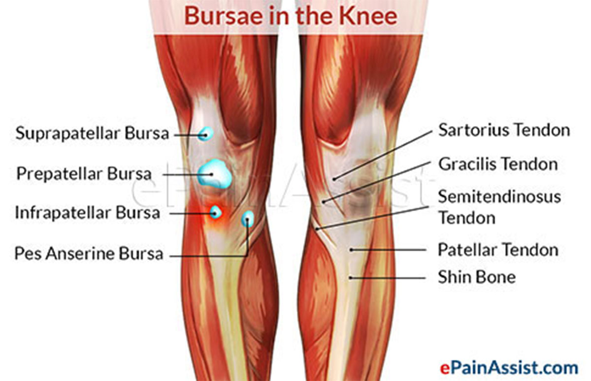 infrapatellar bursitis or clergyman's knee|symptoms|treatment-cold, Human Body