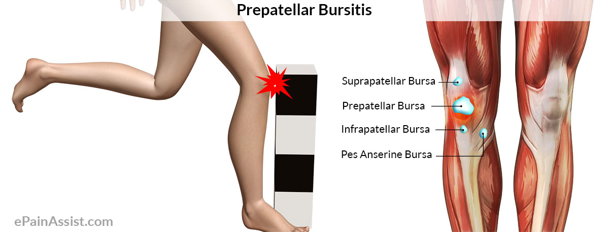 Prepatellar bursitis or beat knee or carpet layer s knee signs causes