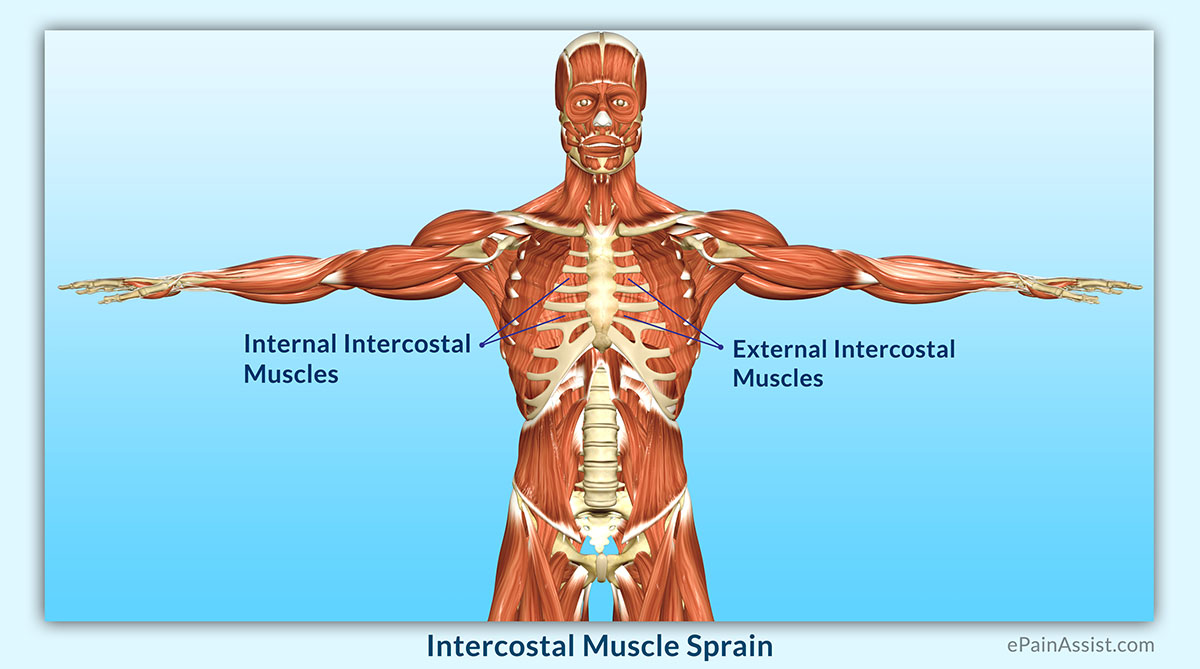 Intercostal Muscle Spraincausessymptomsdiagnosistreatment