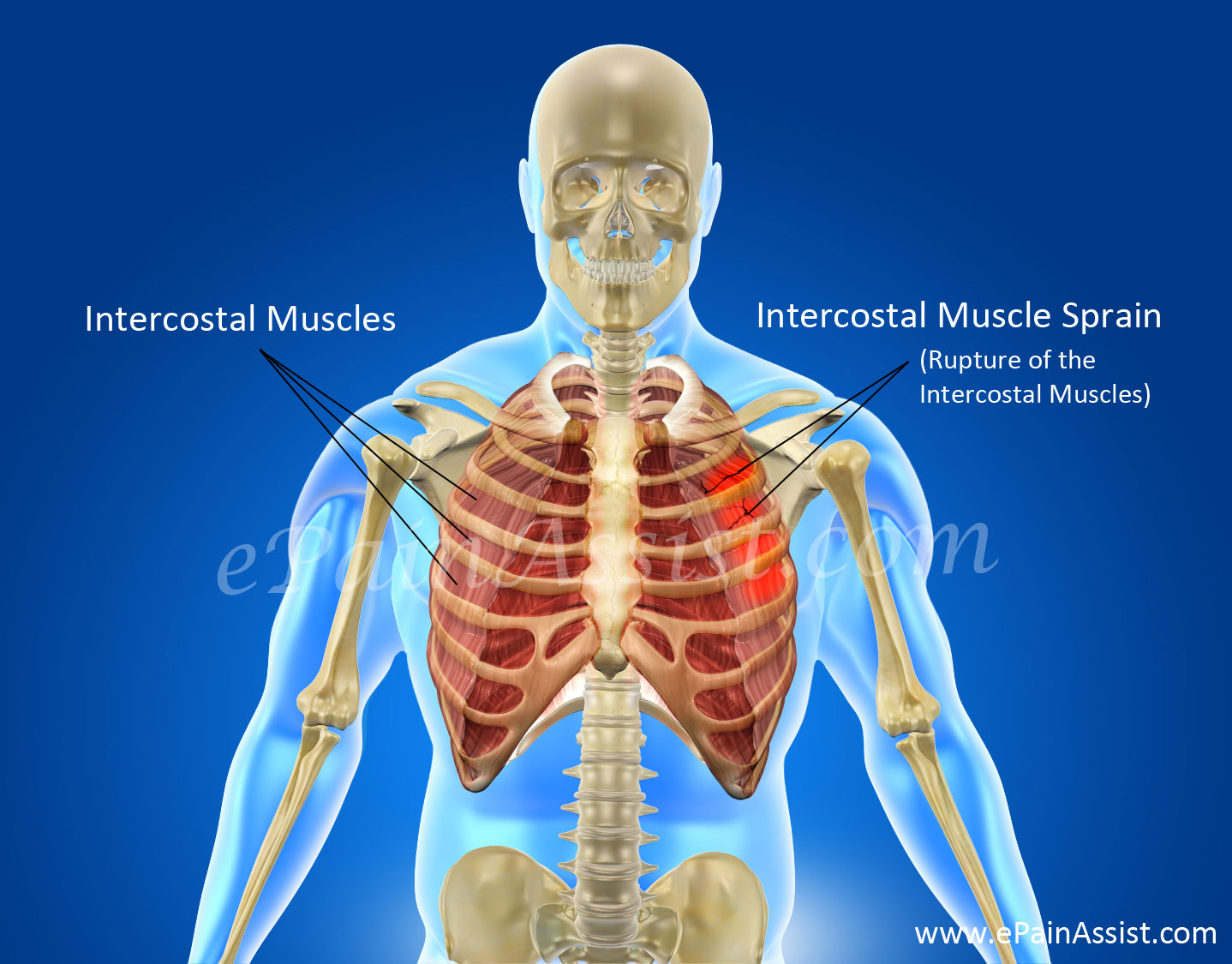 Causes Of Intercostal Muscle Sprain