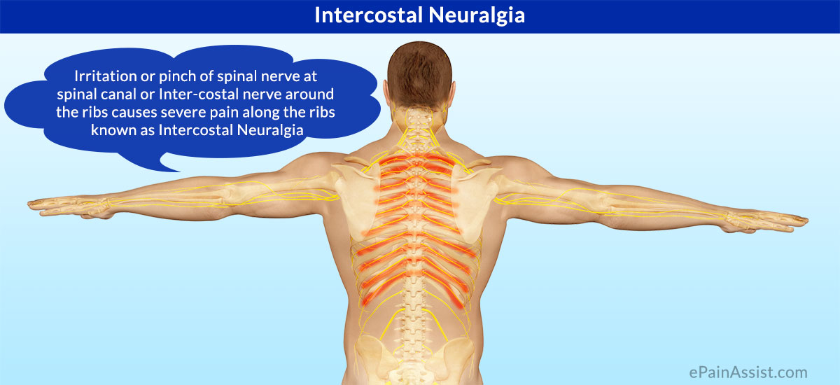 What is Intercostal Neuralgia|Symptoms|Causes|Treatment ...