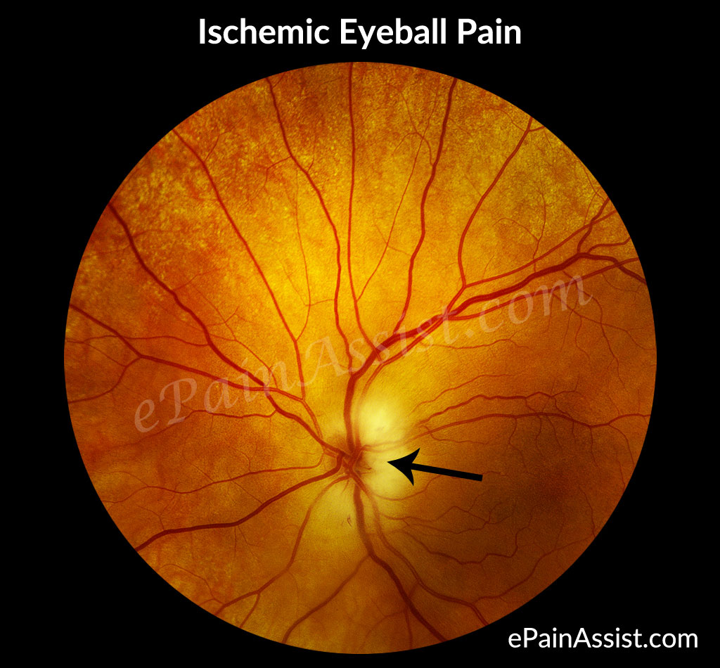 Ischemic Eyeball Pain or Ocular Ischemic Syndrome (OIS)