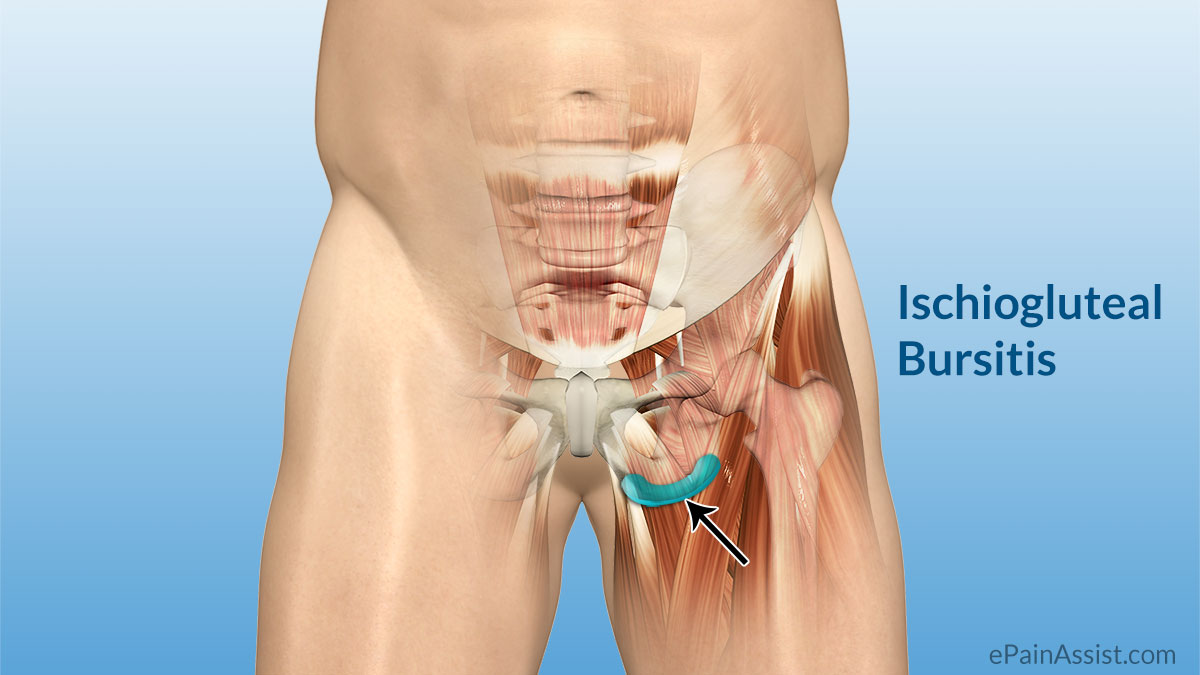 Ischial bursitis or ishiogluteal bursitis bone and spine hamstring ccuart