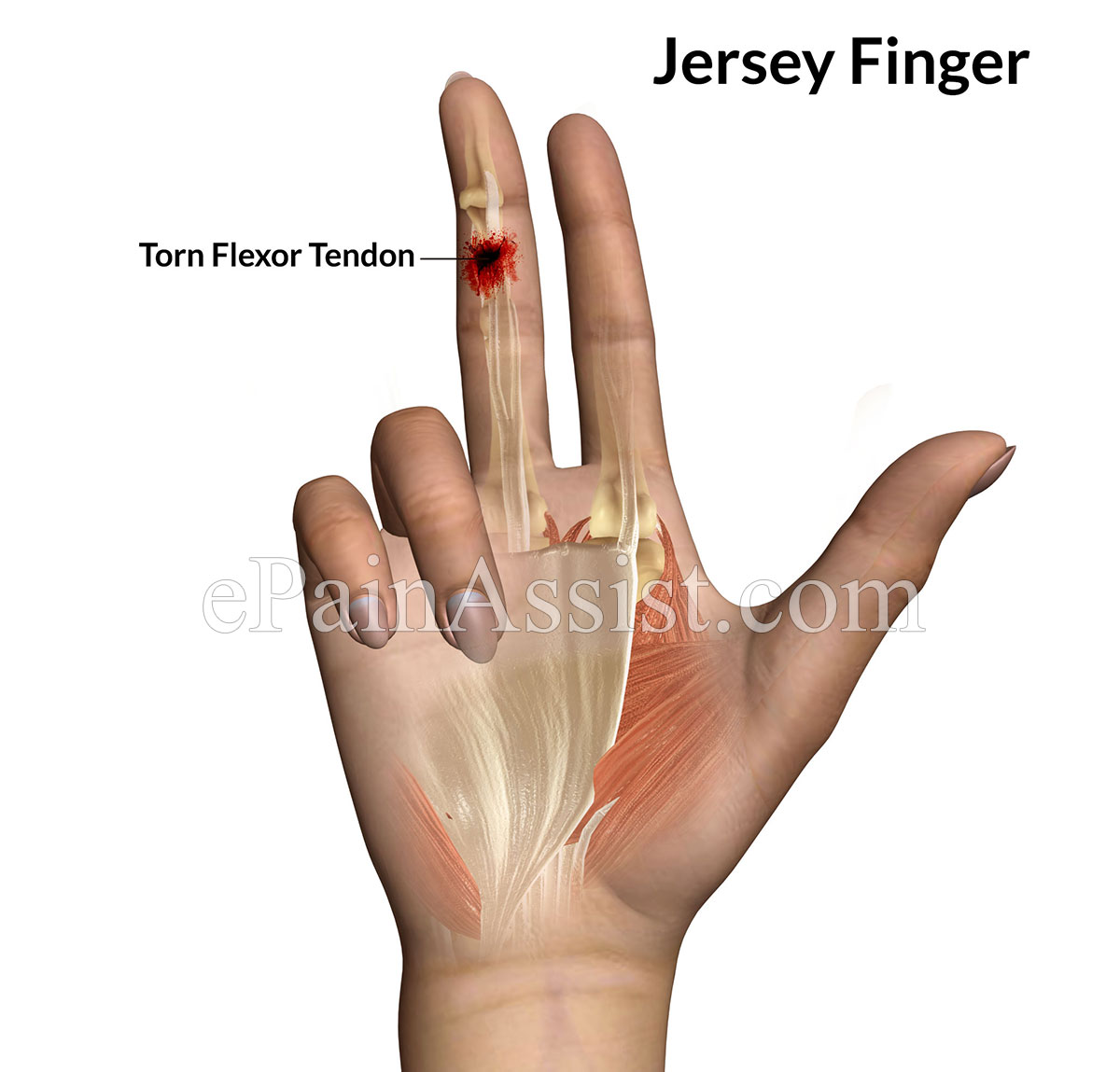 Jersey Finger or Football Finger