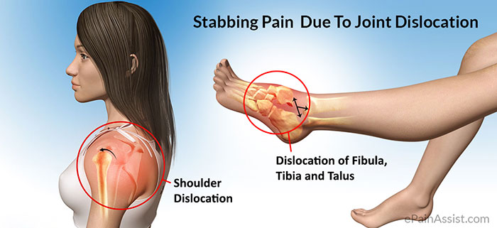Stabbing Pain Due To Joint Dislocation