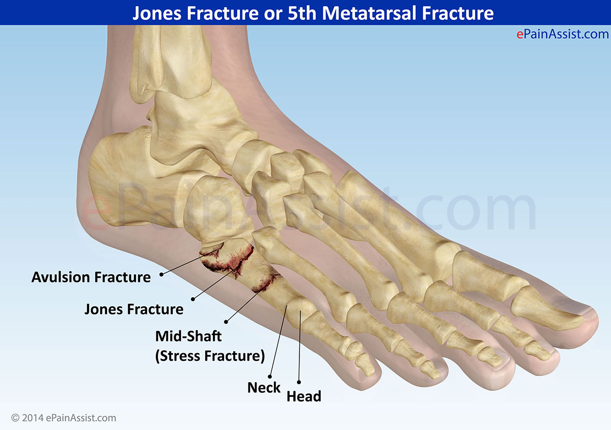 X Ray Broken Ankle ... ankle this fractur...