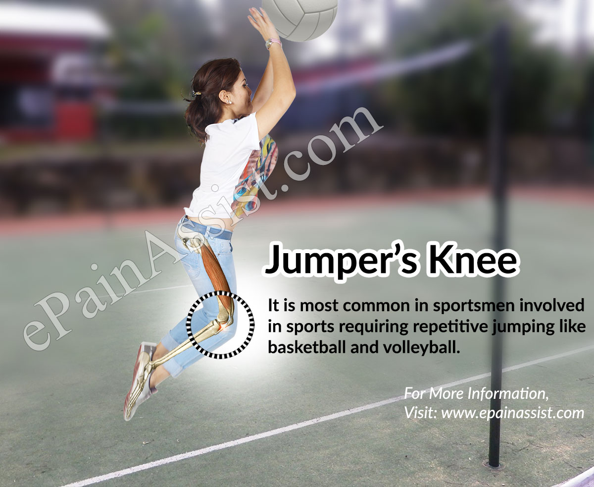 What is Patellar Tendonitis or Jumper's Knee? title=