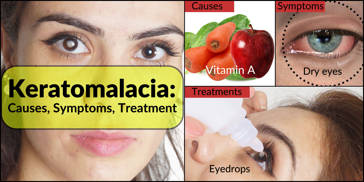 Keratomalacia: Causes, Symptoms, Treatment