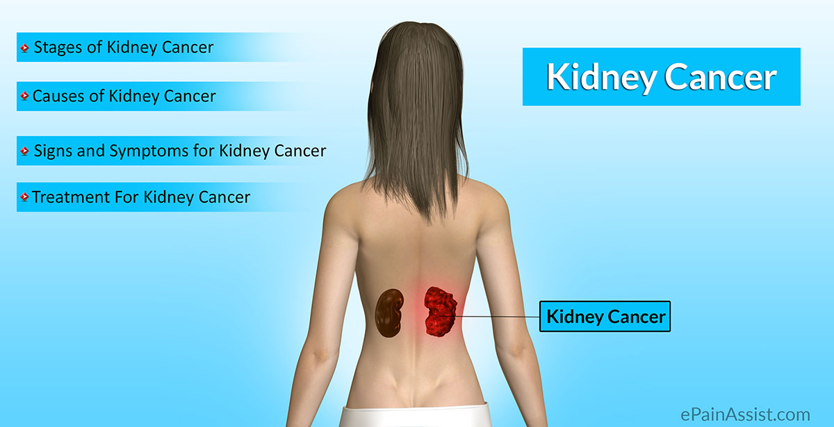 kidney cancer|stages|causes|risk factors|signs|symptoms|tests, Human Body