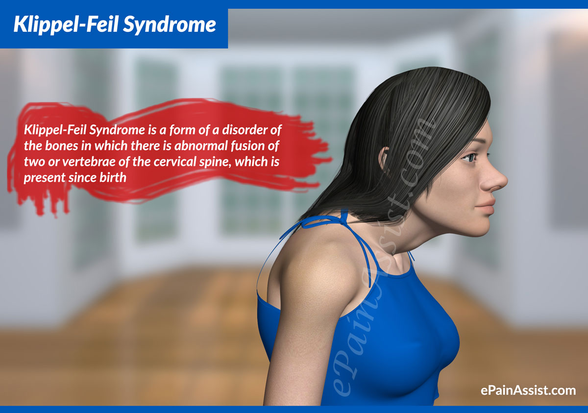 klippel-feil syndrome: treatment, symptoms, signs, causes, Skeleton