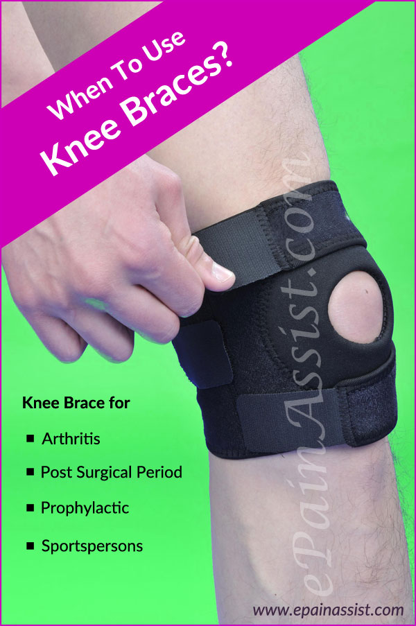 When To Use Knee Braces?