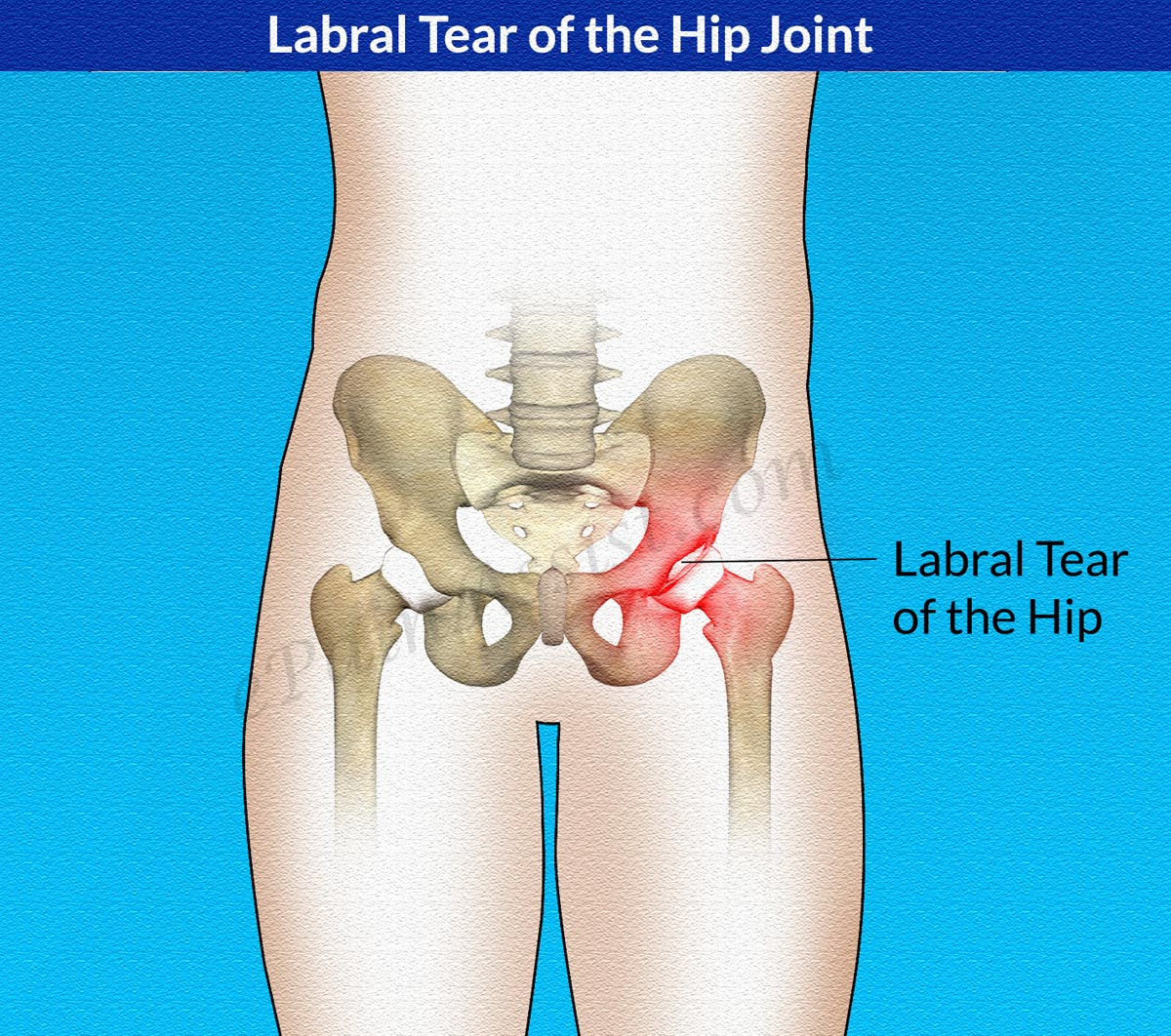 Causes of Labral Tear of the Hip Joint