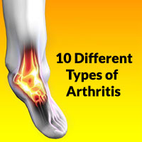 10 Different Types of Arthritis
