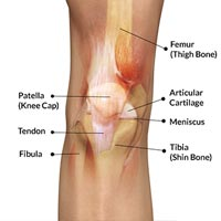 Anatomical Distribution of Knee Joint Pain