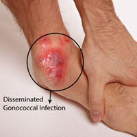 Gonococcal Arthritis or Disseminated Gonococcal Infection