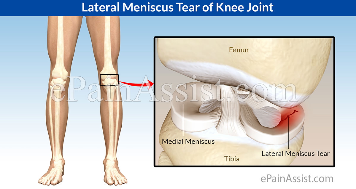 Lateral Meniscus Tear of Knee Joint