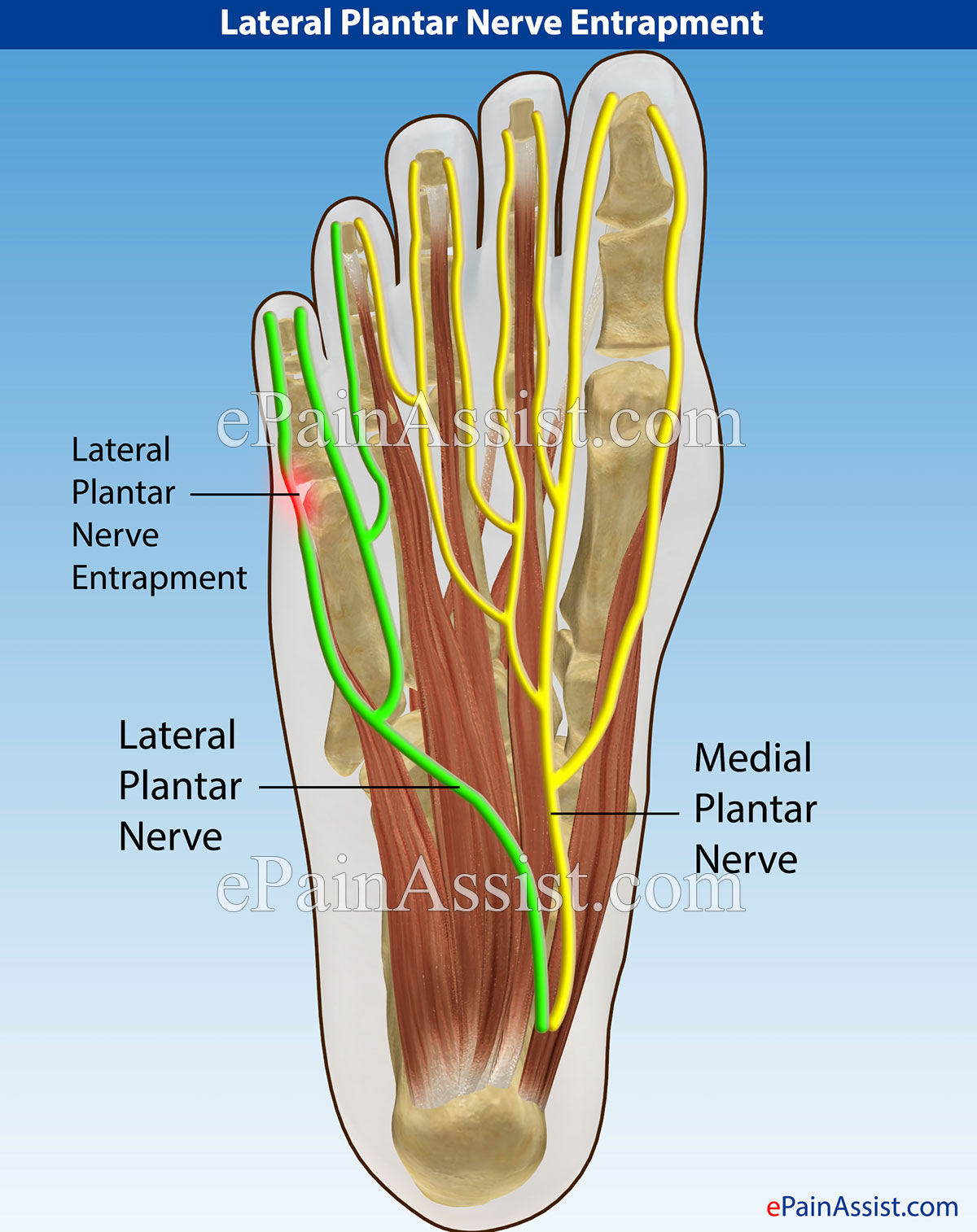 Lateral Plantar Nerve Entrapment