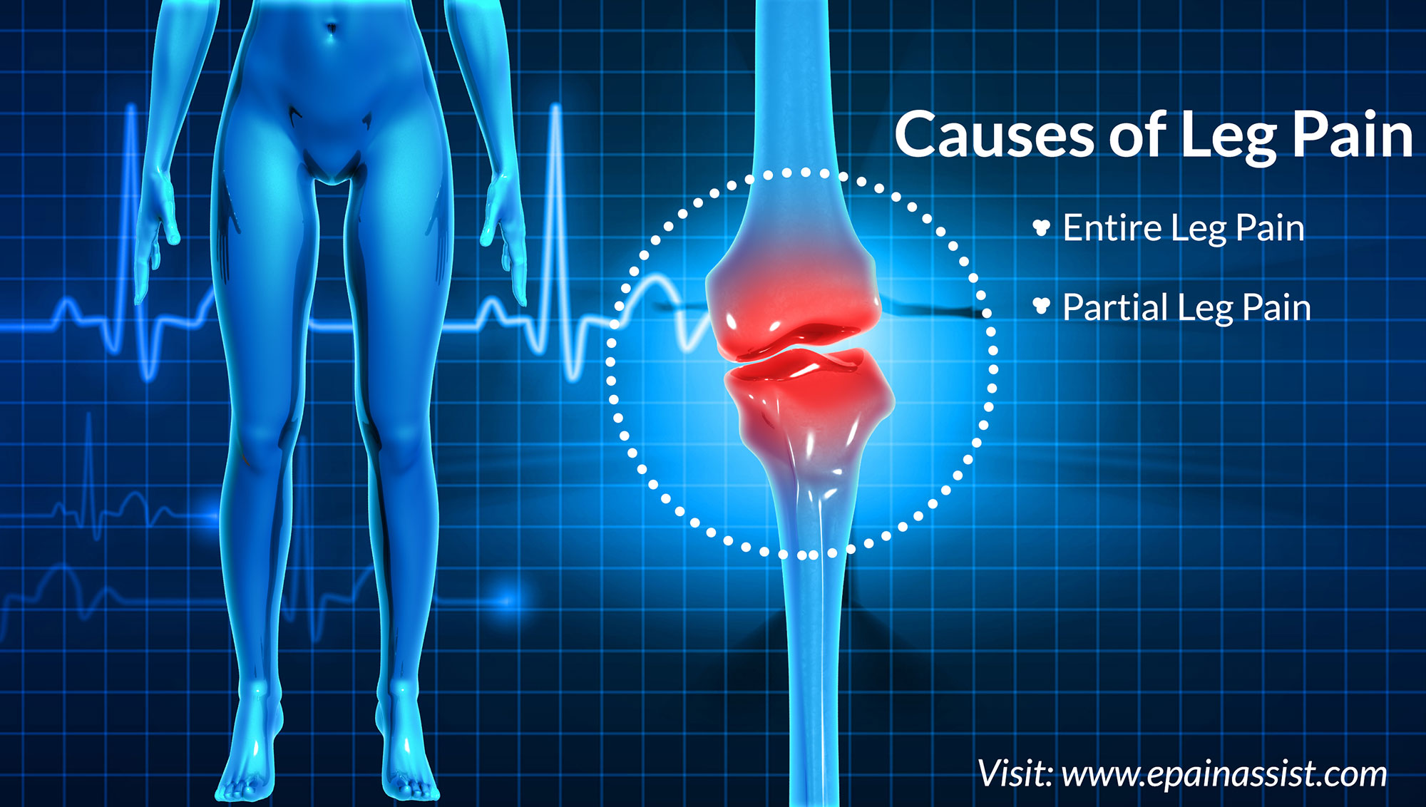 Causes of Leg Pain