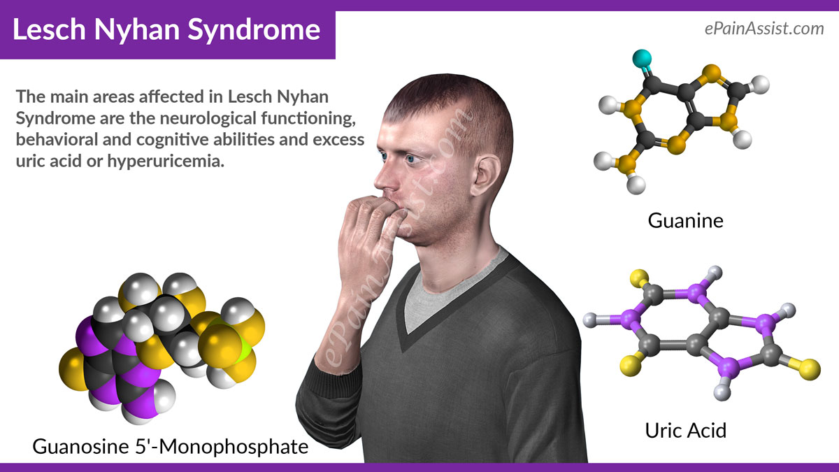 an analysis of the lesch nyhan syndrome a rare genetic disorder Important it is possible that the main title of the report lesch nyhan syndrome is not lesch-nyhan disease mums/ genetic and rare.