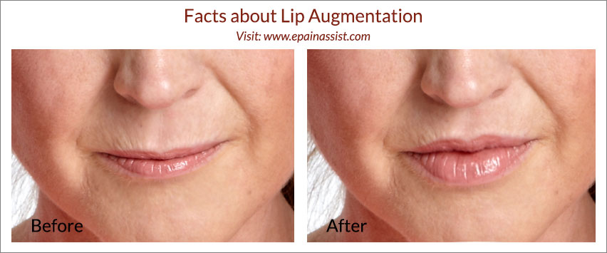Facts about Lip Augmentation