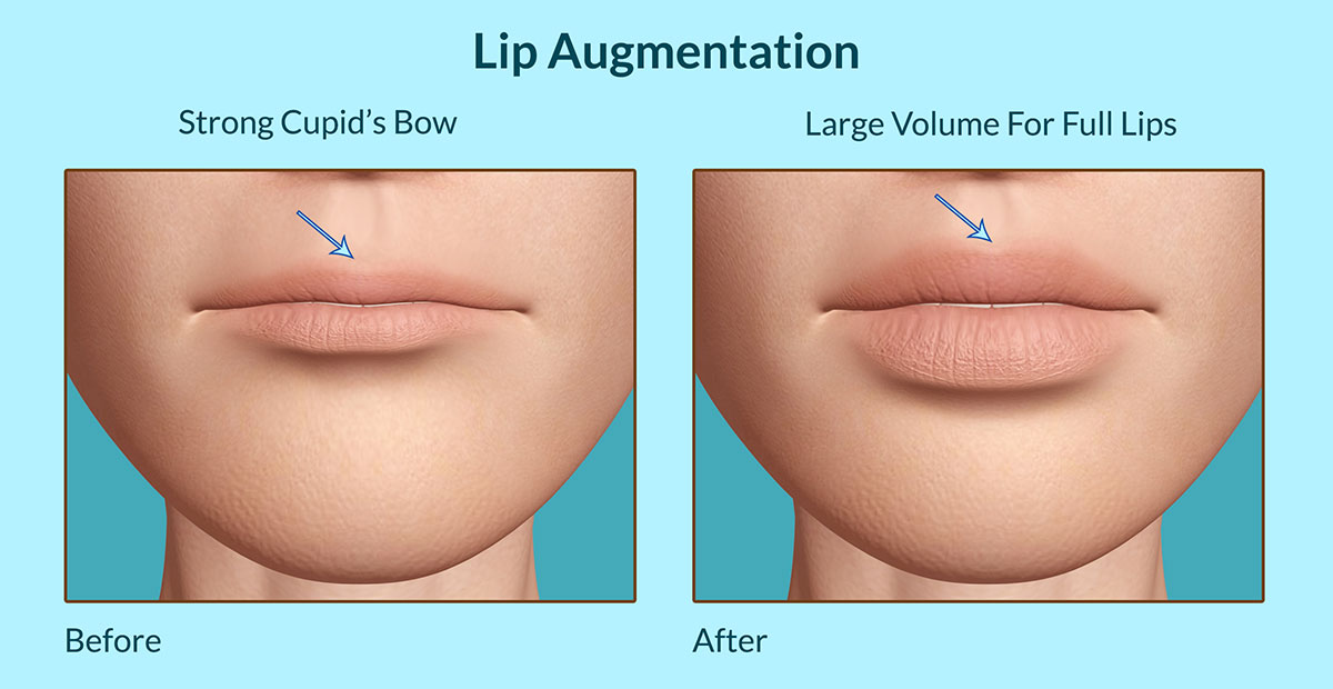 Lip Augmentation: Facts, Types, Pros, Cons, Should One Opt