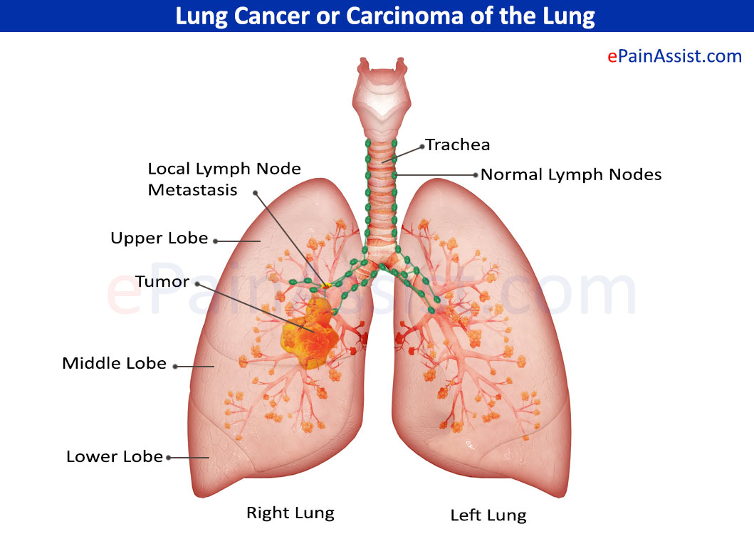 Lung Cancer: Treatment, Causes, Symptoms, Risk Factors, Stages