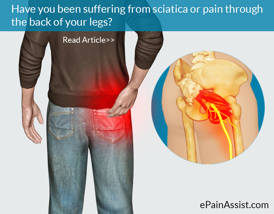 Manage Sciatica with Lifestyle Modifications
