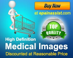 Top Quality High Definition Medical Images Discounted at Reasonable Price