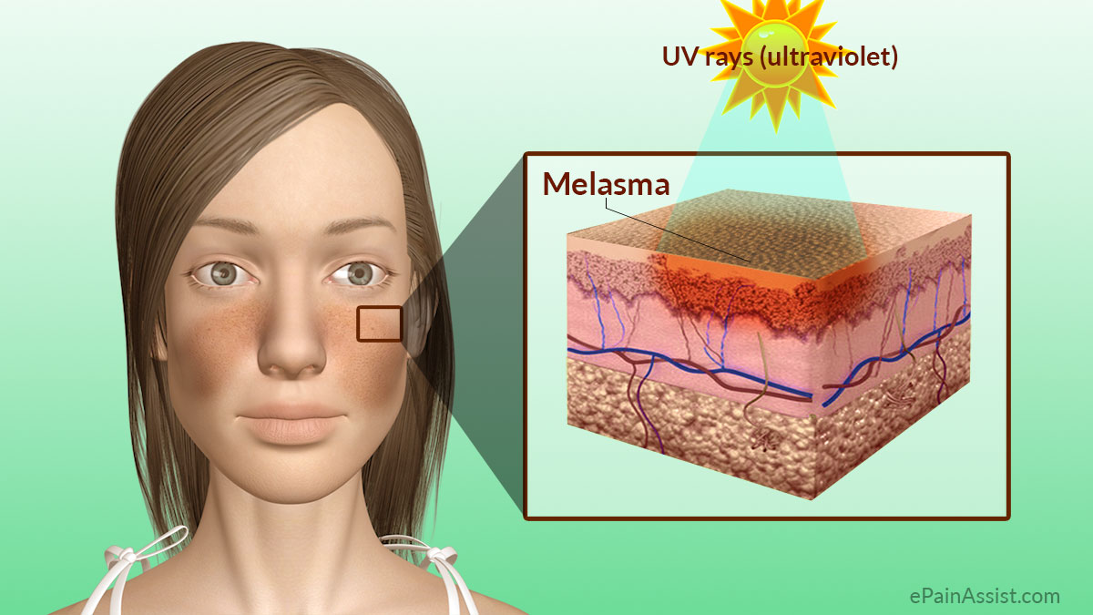 Melasma Treatment - RealSelf.com