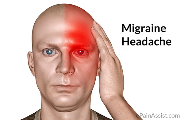 Image result for MIGRAINE