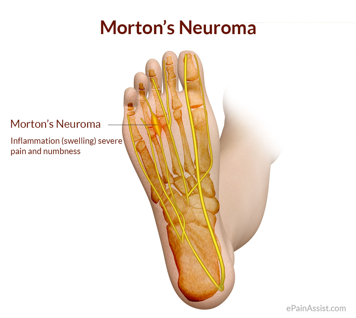 Image result for Neuroma