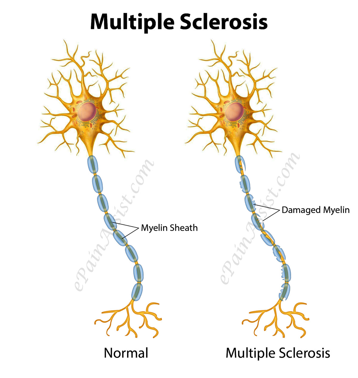 Disseminated Sclerosis
