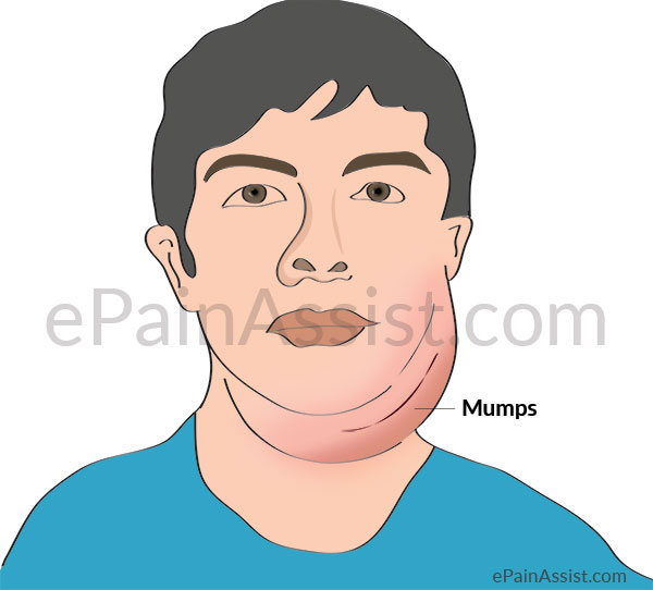 Mumps or Epidemic Parotitis