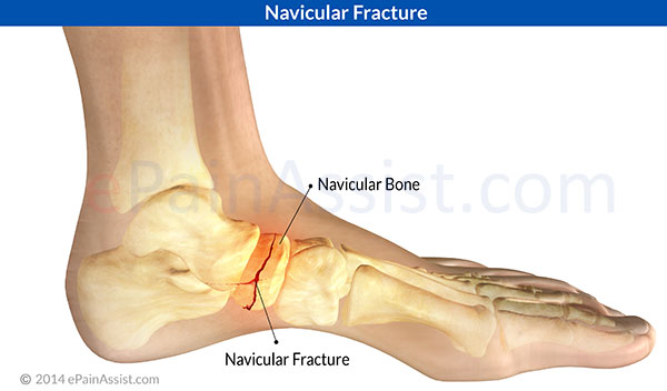 causes and treatments of bone fractures What are three common causes of bone fractures  top broken bone (types of bone fractures)  treatment for bone cancer may include surgical removal.
