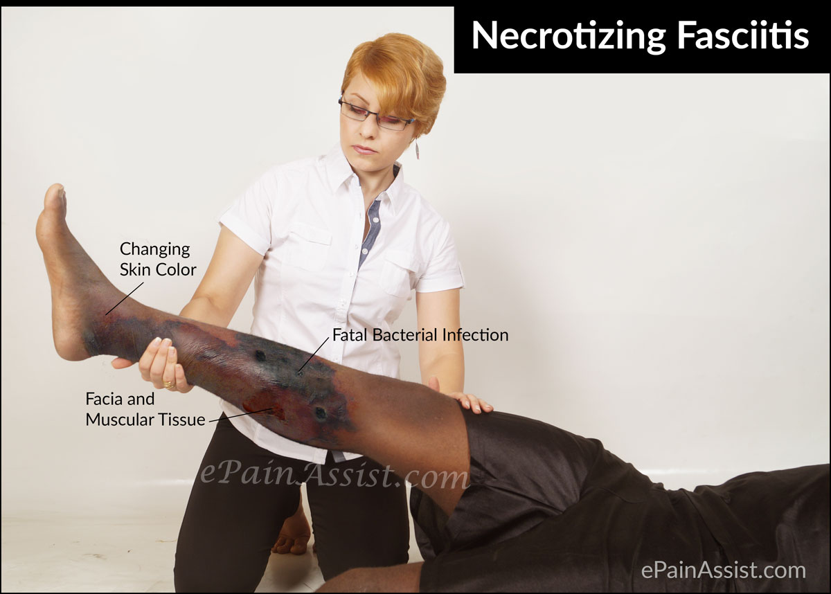 a description of necrotizing fasciitis the flesh eating disease
