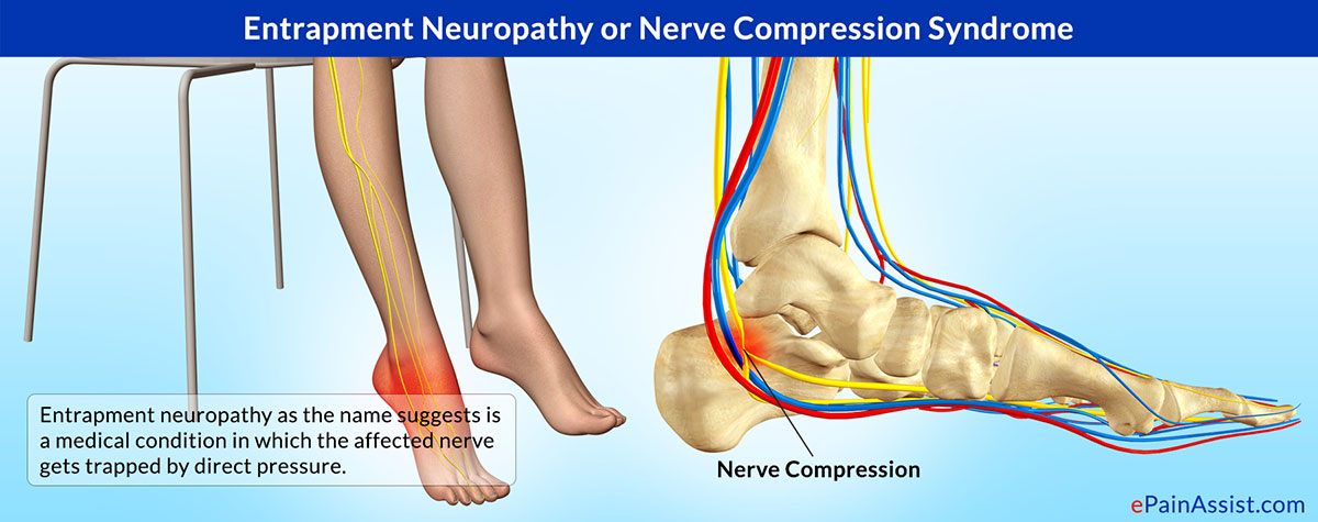 Entrapment Neuropathy Treatment Symptoms Causes Types