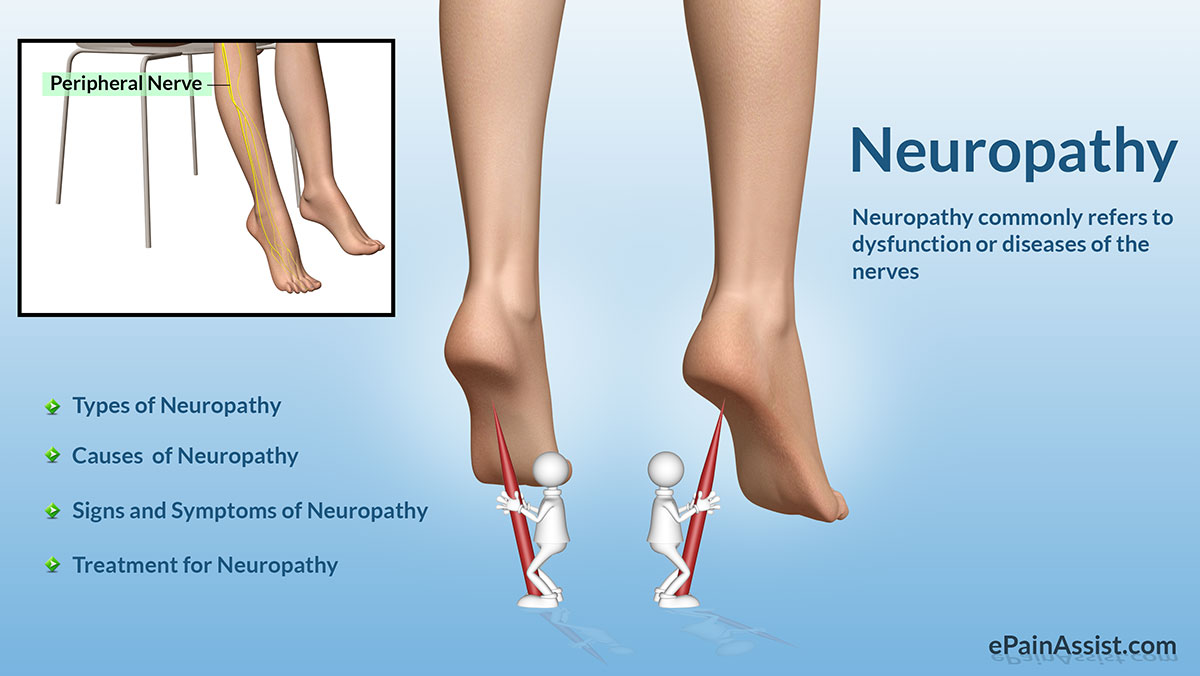 Neuropathy: Classification, Types, Causes, Risk Factors, Symptoms, Treatment, Investigations