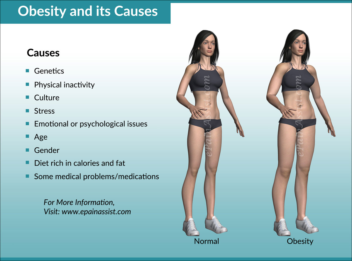 Obesity and its Causes